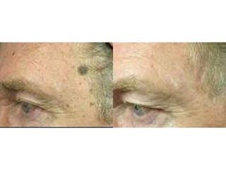Usuwanie zmian skórnych - przed i po