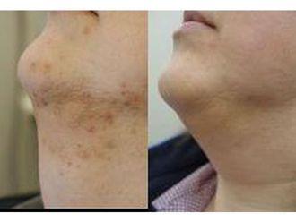 Laserowe usuwanie zmian skórnych-691329