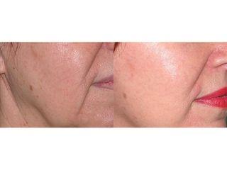 Osocze bogtapłytkowe i liposukcja - przed i po