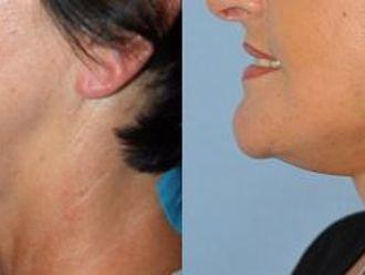 Facelift, Lifting twarzy (podciąganie powłok twarzy) - 653440