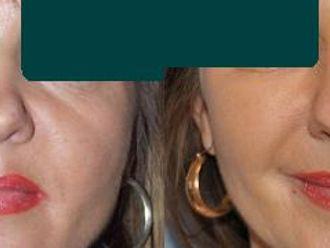 Lipofiling - przeszczep tłuszczu - 653444