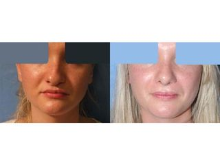 Przed i po: lipofilling twarzy