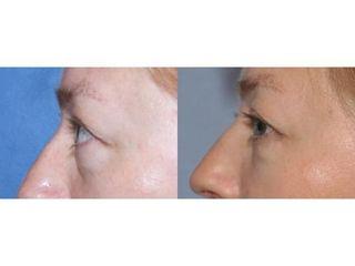 Przed i po: blefaroplastyka