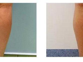 Plastyka ud (Lifting ud) - 654082