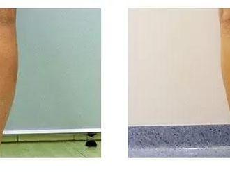 Plastyka ud (Lifting ud) - 654083