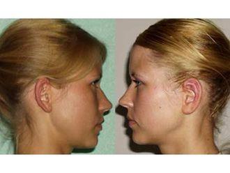 Korekcja uszu-687023