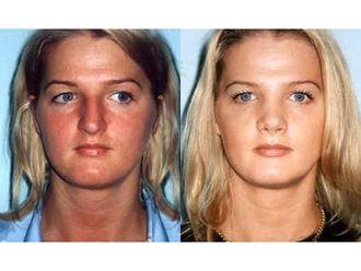 Chirurgia plastyczna-687042