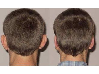 Korekcja uszu-687050