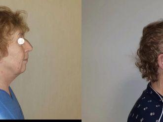 Facelift, Lifting twarzy (podciąganie powłok twarzy) - 659140