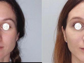 Korekcja nosa (Operacja nosa) - 659145