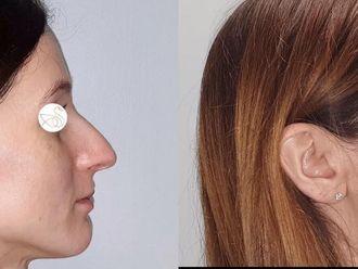 Korekcja nosa (Operacja nosa) - 659146