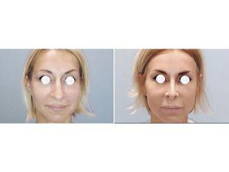 Chirurgia plastyczna-686014
