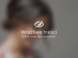 Plastyka brzucha-654699