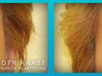 Blefaroplastyka-654723