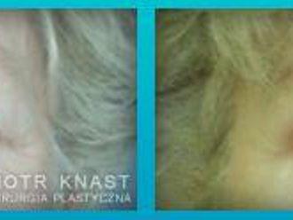 Blefaroplastyka-654727