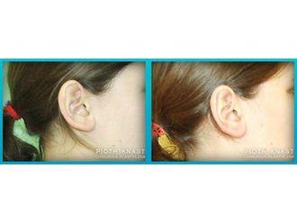 Korekcja uszu-691772