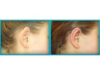 Korekcja uszu-691783