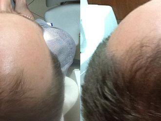 Leczenie wypadania włosów - 657130