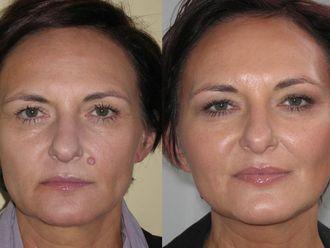 Facelift, Lifting twarzy (podciąganie powłok twarzy) - 654997