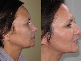 Facelift, Lifting twarzy (podciąganie powłok twarzy) - 654998