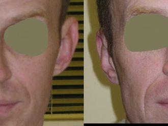 Korekcja uszu (Otoplastyka)-655006