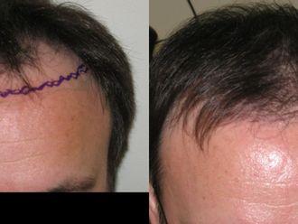 Przeszczep włosów-655008