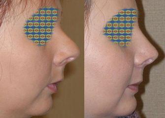 Korekta czubka nosa - przed i po