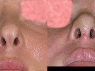 Korekcja nosa (Operacja nosa)-655059