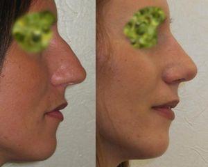 Zmniejszenie nosa - przed i po