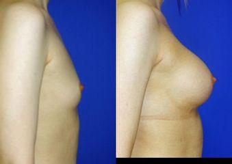Powiększenie piersi implantami - przed i po
