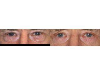 Blefaroplastyka powiek dolnych - przed i po