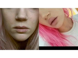 Lip lift - przed i po