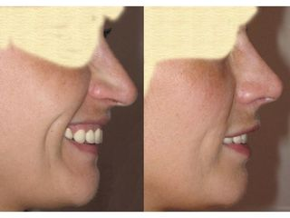 Korekta nosa - przed i po