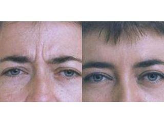 Botoks - przed i po