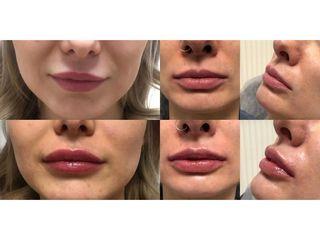 Powiększanie ust: przed i po