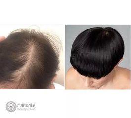 Przeszczep włosów u kobiety: przed i po