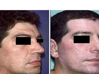 Facelift, Lifting twarzy (podciąganie powłok twarzy)-655237