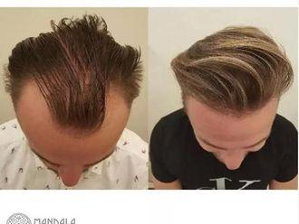 Przeszczep włosów-655240