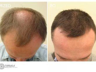 Przeszczep włosów-655253