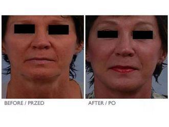 Lifting twarzy-687290