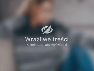 Plastyka brzucha-687307