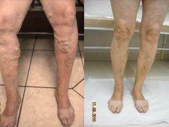 Skleroterapia żylaków - 656041