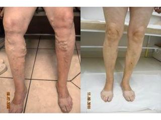 Leczenie żylaków - przed i po