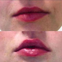 Korekta ust kwasem hialuronowym - przed i po