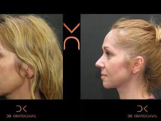 Korekcja nosa (Operacja nosa) - 652501