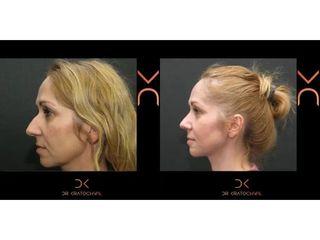Operacja plastyczna nosa - efekty