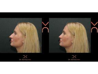 Korekcja nosa - efekty