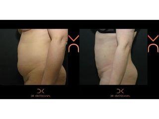 Liposukcja brzucha - efekty