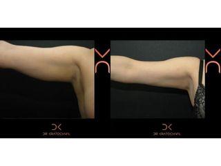 Liposukcja ramion - efekty