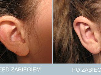 Korekcja uszu - 786655